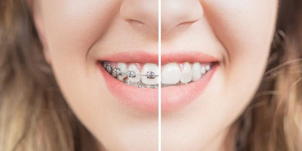 braces treatment plan